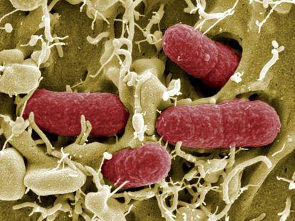 La bacteria E. Coli es una de las que presentan más resistencias