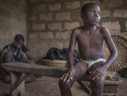 Aniwanou, ya recuperado después de tres intervenciones y varios meses de rehabilitación en su casa de Monzoungoudo, Benín.