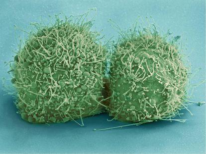 Células HeLa para investigación en inmunología.